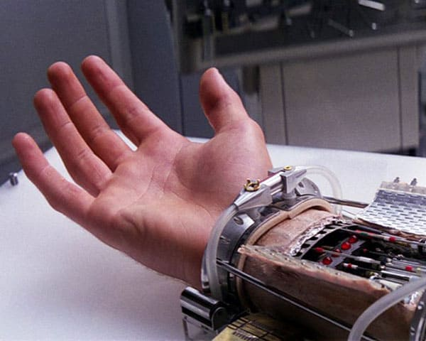 Image of luke prosthetic limb