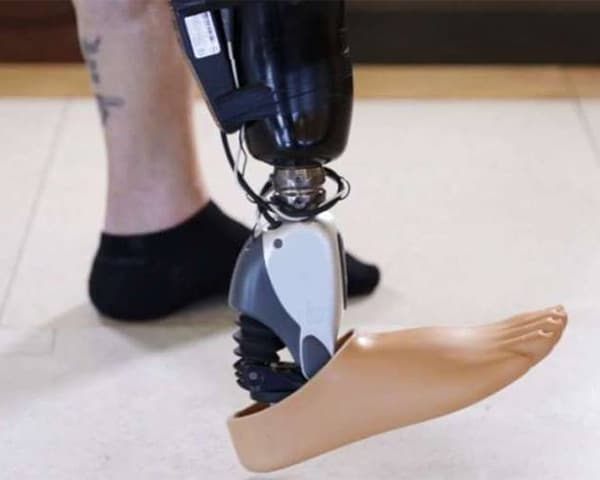 Image of artifical leg