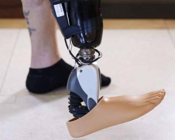 Image of artifical leg