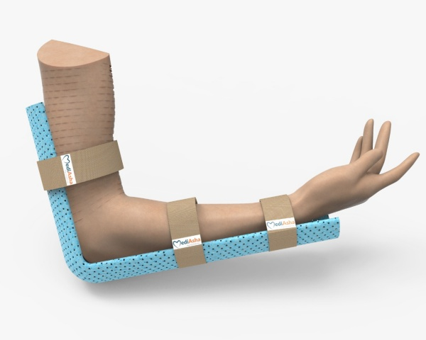 Image of FractoAid plaster splint used on a person's arm