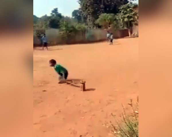 disabled boy playing cricket