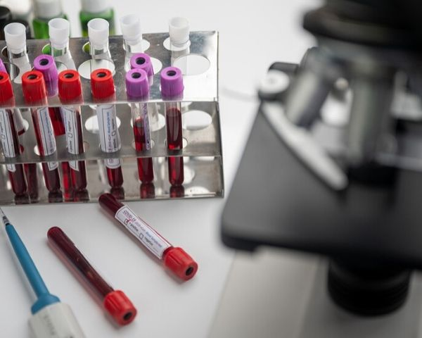6 test tubes filled with blood