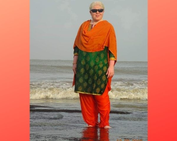 woman with albinism