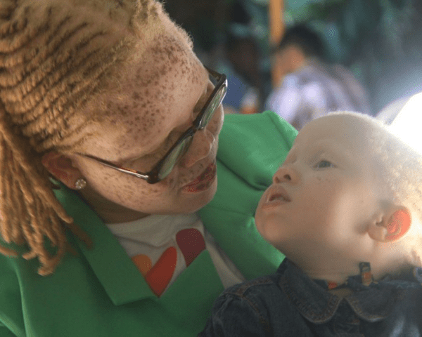 Jayne Waitera, who has Albinism, is a change maker from Kenya.