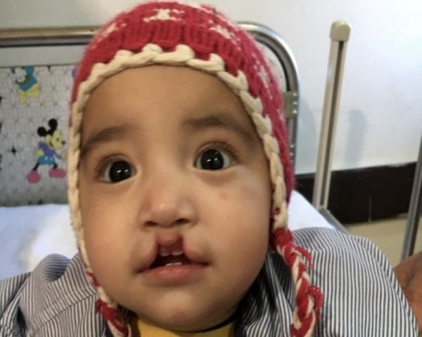 Image of a young baby with cleft palate